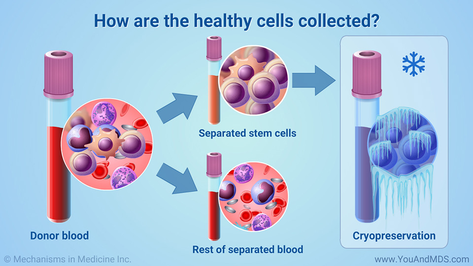 How are the healthy cells collected?