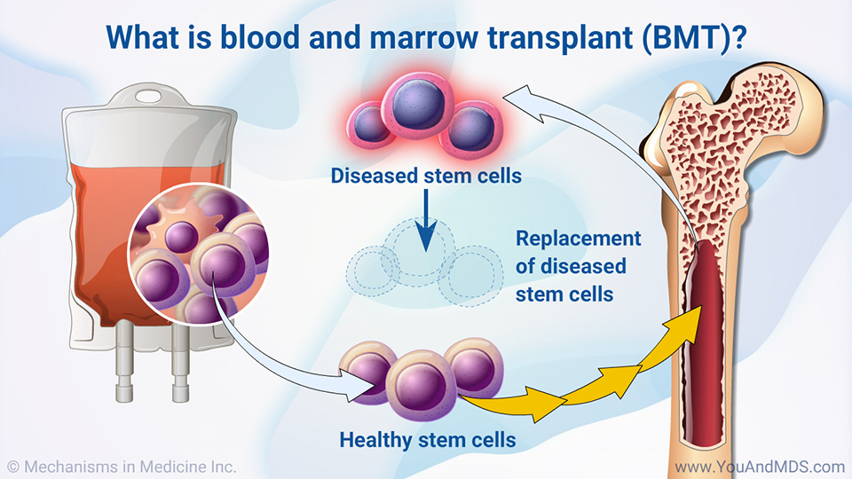What is a blood and marrow transplant (BMT)?