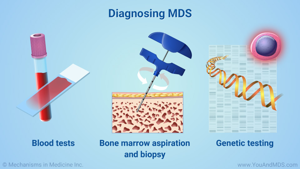 Diagnosing MDS