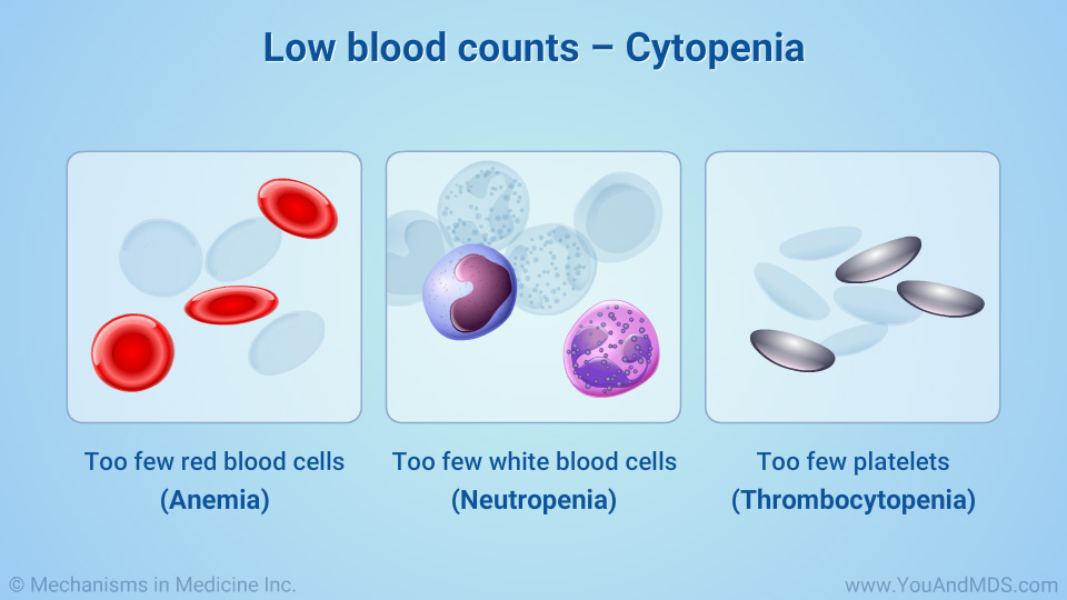 Low blood counts – Cytopenia