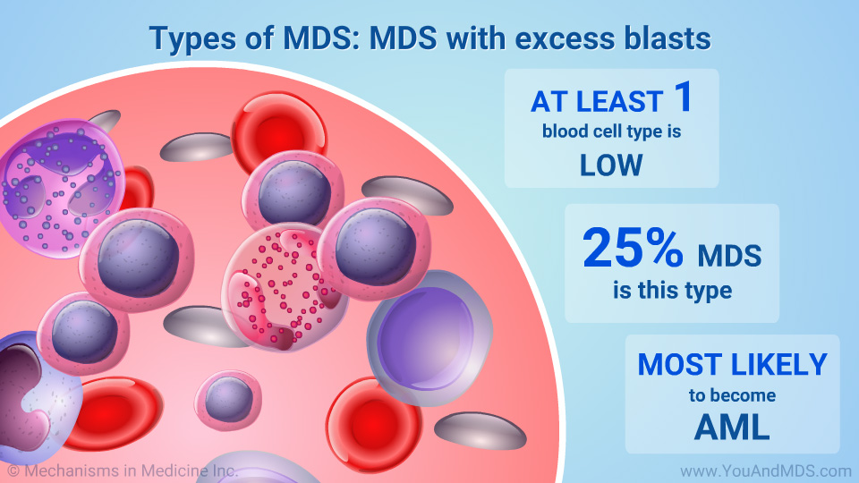Types of MDS: MDS with excess blasts