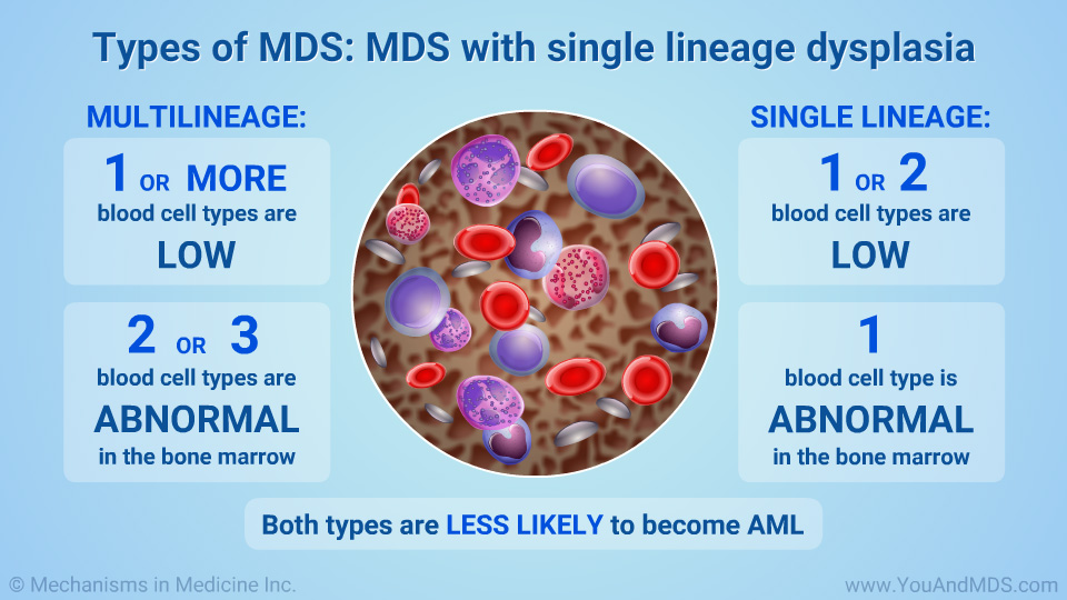 Types of MDS: Multilineage and single lineage dysplasia