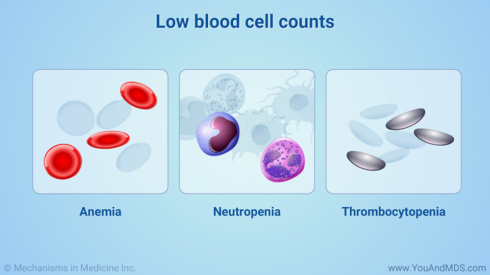 Low blood cell counts