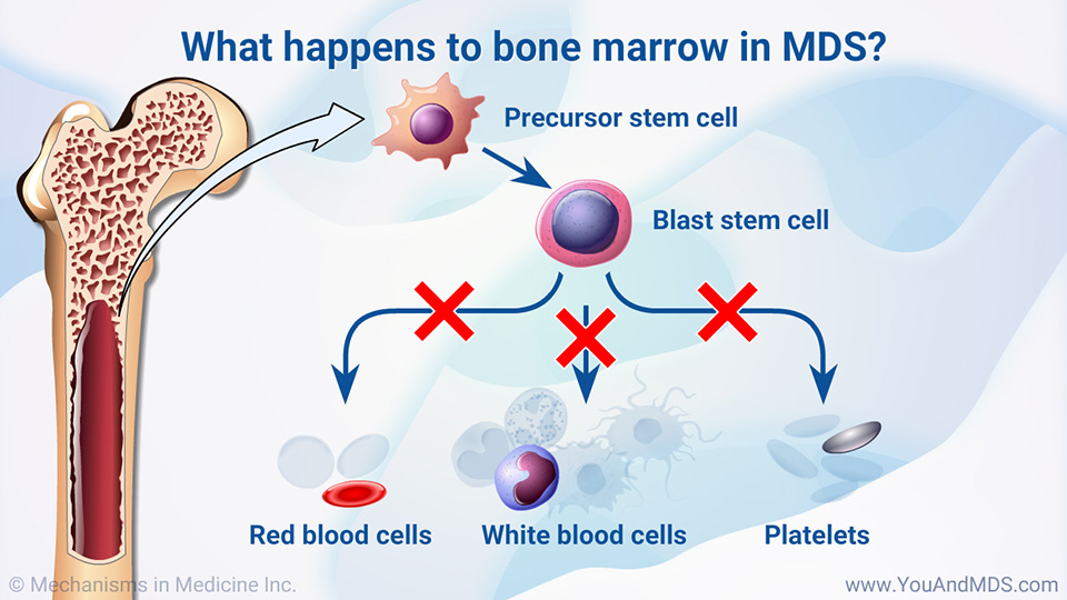 What happens to bone marrow in MDS?