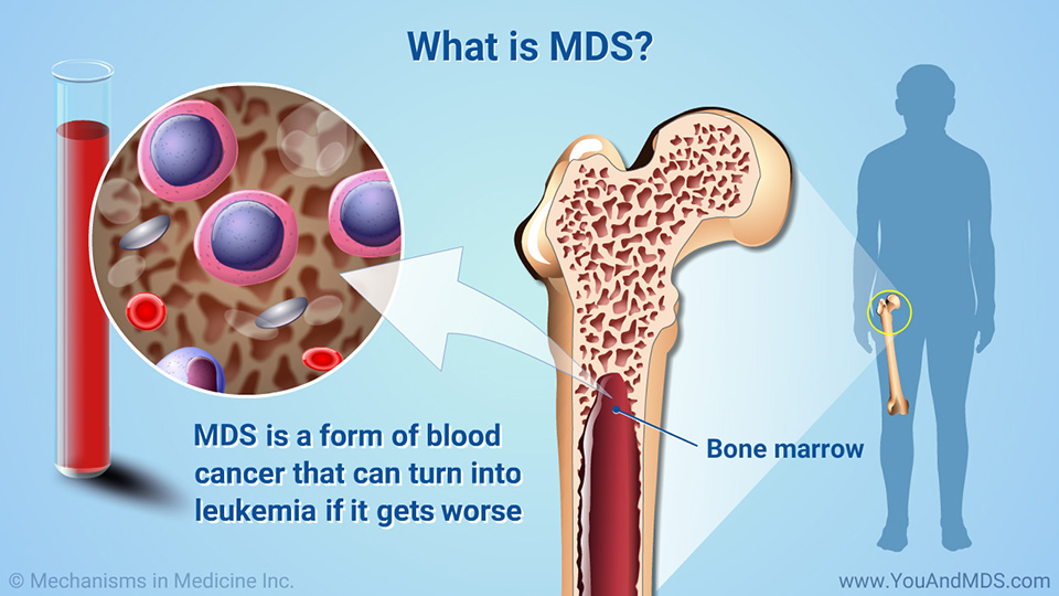 What is MDS?
