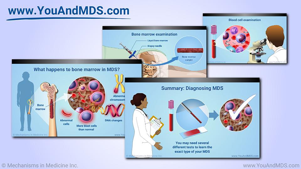 Slide Show - Diagnosis of MDS